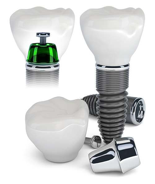 Implant Dentist in Mt Laurel