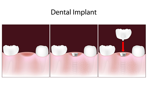 Dental Implants in Mount Laurel Township