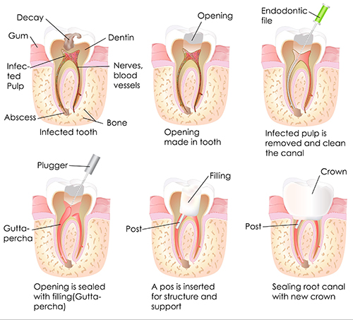 Root Canal in Mt. Laurel